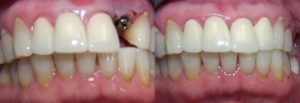 Before and after Implants and Crowns